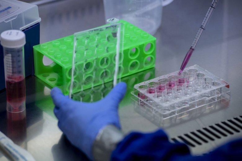 """Kevesebb új fertőzést regisztráltak, de érződik a tesztek számán a """"vasárnapi műszak"""""""