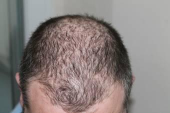 Felcsúszik a homlok, kilátszik a fejbőr: betegség is állhat a hajhullás hátterében