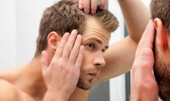 A férfiasság jele. De visszafordítható?