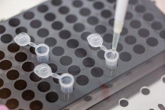 A járvány kezdete óta most a legalacsonyabb az egy nap alatt mért fertőzöttségi arány